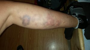 Verletzungen Alpencross